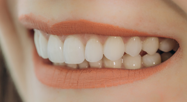 Put on Your Best Smile With Sydney's Dental Veneers