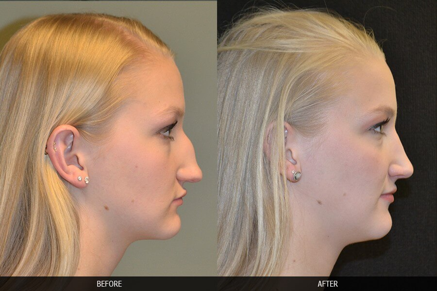 Foresee the New You: Before and After Nose Jobs