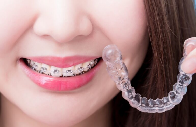 Why You Should Opt to Get Clear Braces in Parramatta
